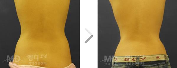 腰部吸脂整形手术前后对比照片