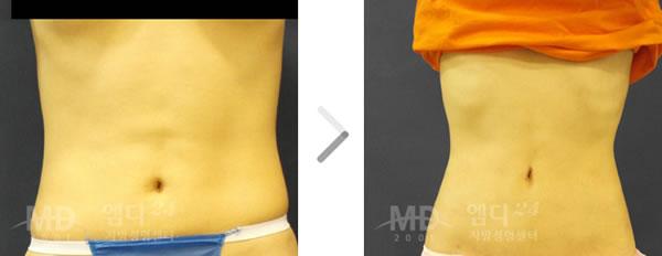 腰部吸脂手术前后对比照片