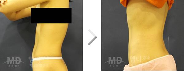 腰部吸脂整形术前后对比照片