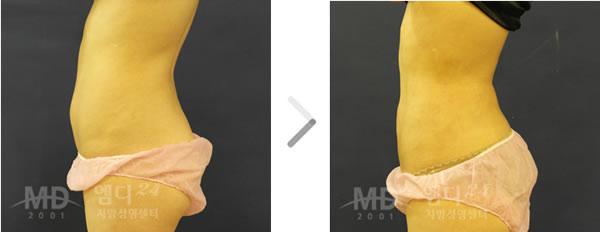 腹部吸脂手术前后对比照片