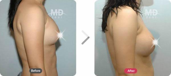 假体隆胸整形术前后对比照片