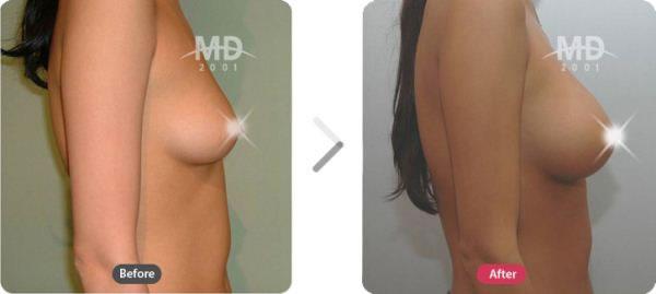 假体隆胸整形前后对比照片