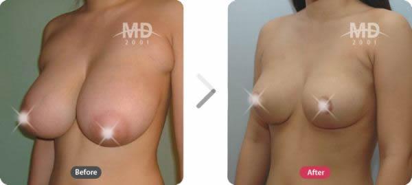 韩国MD整形外科巨乳缩小与乳晕缩小对比案例