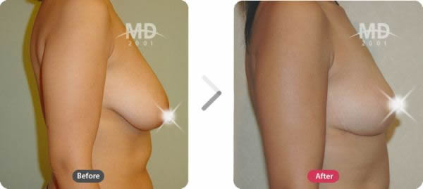 韩国MD整形外科乳房下垂悬吊术对比案例