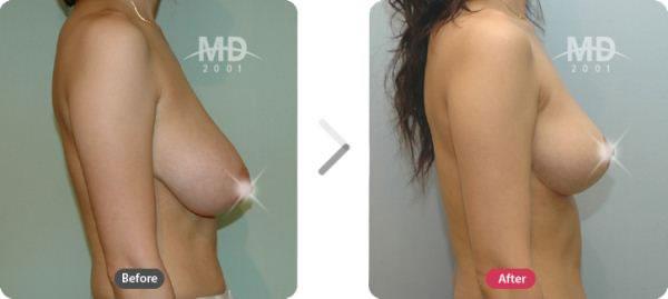 韩国MD整形外科胸部下垂矫正术+假体隆胸对比案例