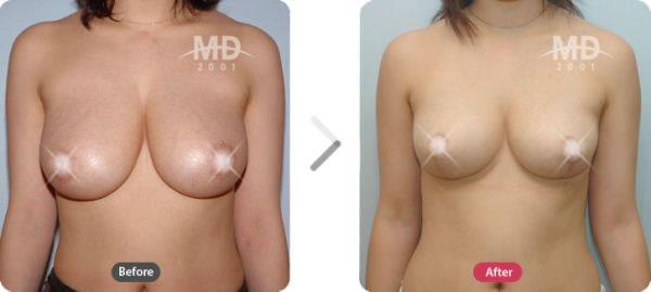 韩国MD整形外科乳房外扩矫正术对比案例