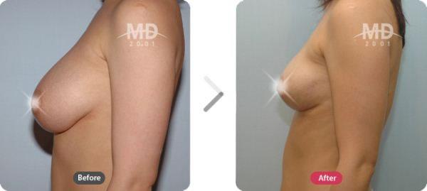 韩国MD整形外科乳房下垂矫正术对比案例