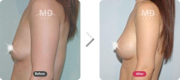 隆胸整形手术前后对比照片