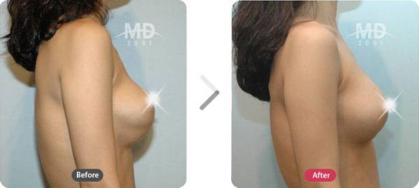 乳房畸形矫正术前后对比照片