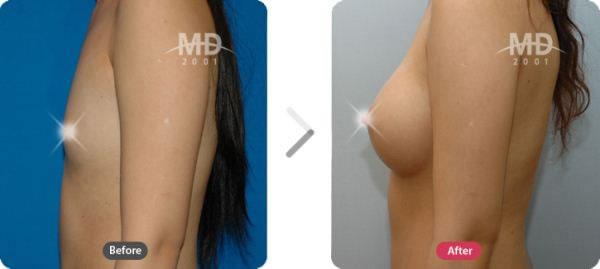 韩国MD整形外科假体隆胸手术对比案例