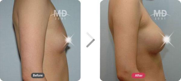 假体隆胸术前后对比照片
