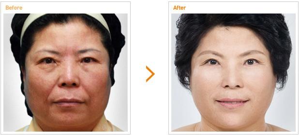 Anti-aging手术前后对比照片