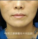 腮骨缩小术前后对比照片