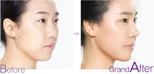 鼻子整形手术前后对比照片