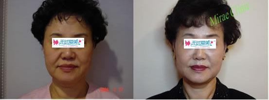 全脸部和颈部提升 两年以后