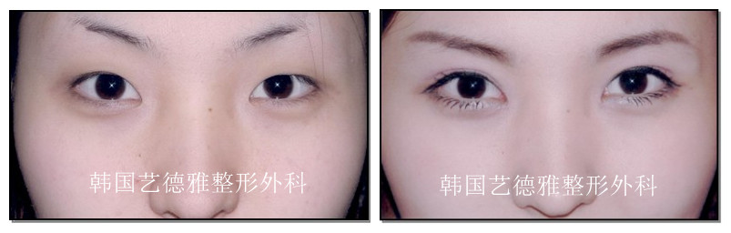 双眼皮手术前后对比照片