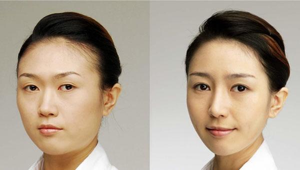 眼睛、鼻子、面部轮廓手术前后对比照片