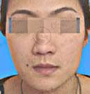 陕西省友谊医院整形玻尿酸丰唇效果对比图