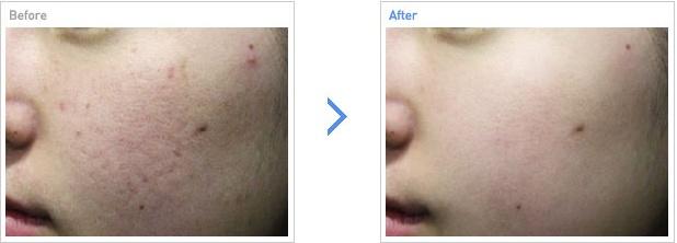 [高兰得整形外科]毛孔激光治疗 前后照片