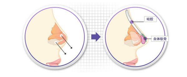 假体隆鼻手术-韩国item整形外科医院-无忧爱美网整形