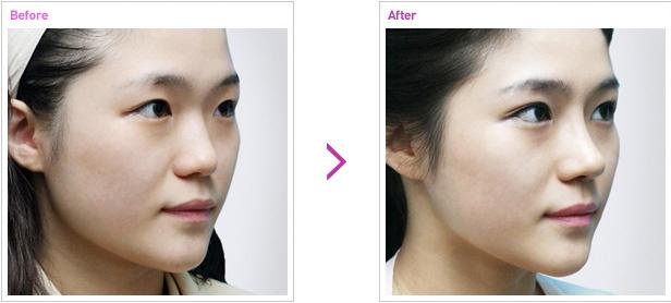 [高兰得整形外科]鼻子手术 前后照片