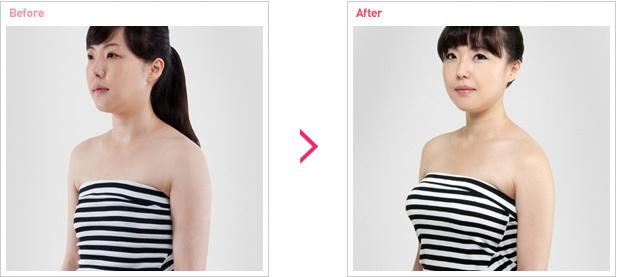 [高兰得整形外科]隆胸手术 前后照片