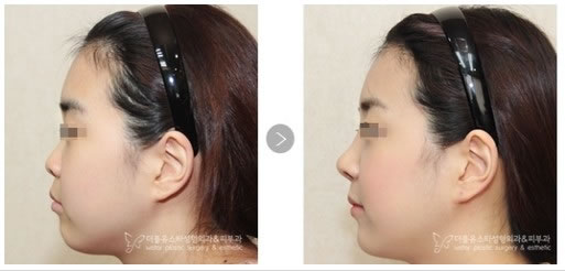 韩国W-star整形外科医院鼻部整形手术对比案例