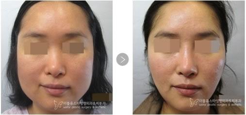 韩国W-star整形外科医院颜面轮廓手术对比案例