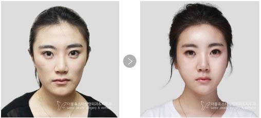 韩国W-star整形外科医院自体脂肪移植对比案例