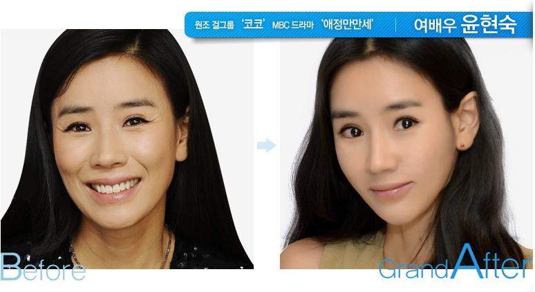[高兰得整形外科]两颚,下颌角缩小手术 前后照片