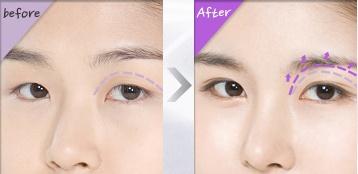 [高兰得整形外科]眼睛手术 前后照片