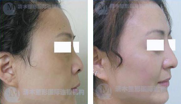 北京清木整形鼻综合手术