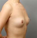 假体隆胸手术案例对比图