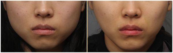 面部轮廓整形手术案例对比图