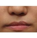 唇裂兔唇矫正案例对比图术后