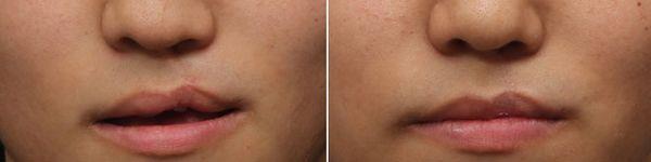 唇裂兔唇矫正案例对比图