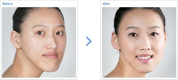 [高兰得整形外科]两颚手术 前后照片