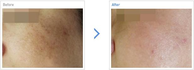 [高兰得整形外科]激光治疗—弹性和皱纹 前后照片