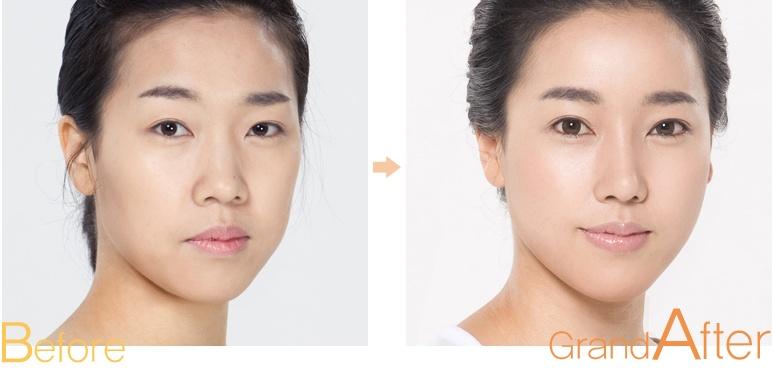 [高兰得整形外科]脂肪移植 前后照片
