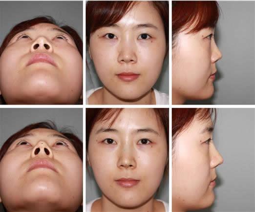 鼻部整形手术前后对比照片
