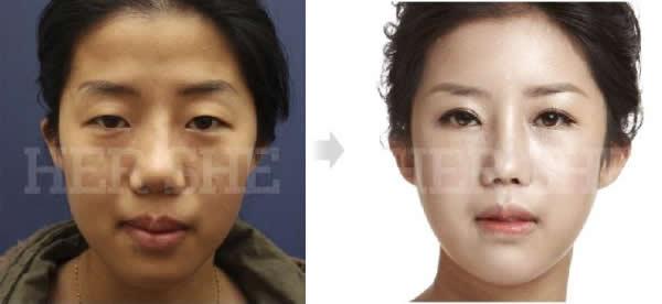 眼部整形手术前后对比照片