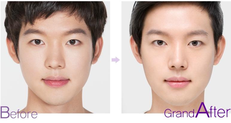 [高兰得整形外科]隆鼻手术—歪鼻手术 前后照片