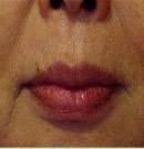 口周皱纹祛除术前与术后三年对比照片