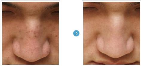 [高兰得整形外科]去除黑斑激光治疗 前后照片