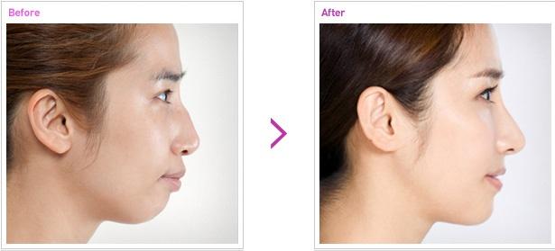 [高兰得整形外科]有凸嘴的鼻手术 前后照片