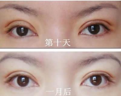 整形日记之双眼皮手术全过程