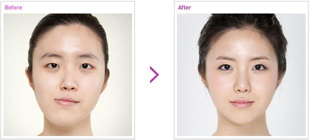 眼睛 两颚手术前后照片图片