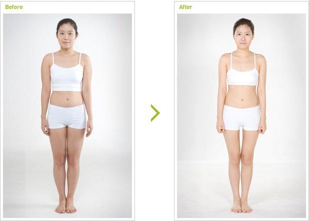 [高兰得整形外科]mini迷你吸引脂肪手术 前后照片