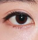 矫正双眼皮术前后对比照片