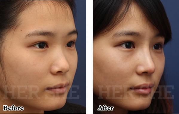 line鼻部整形对比案例